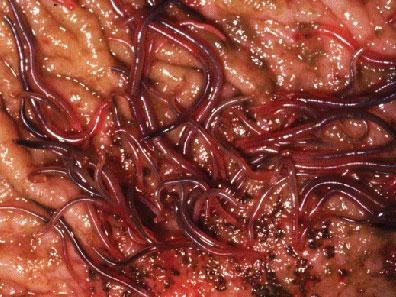 symptomer på parasitter i kroppen